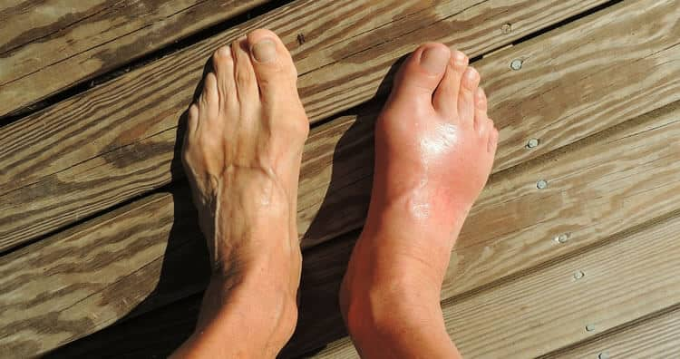 Bunion Toes